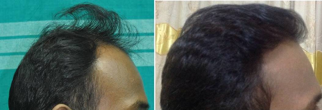Hair replant malayalam
