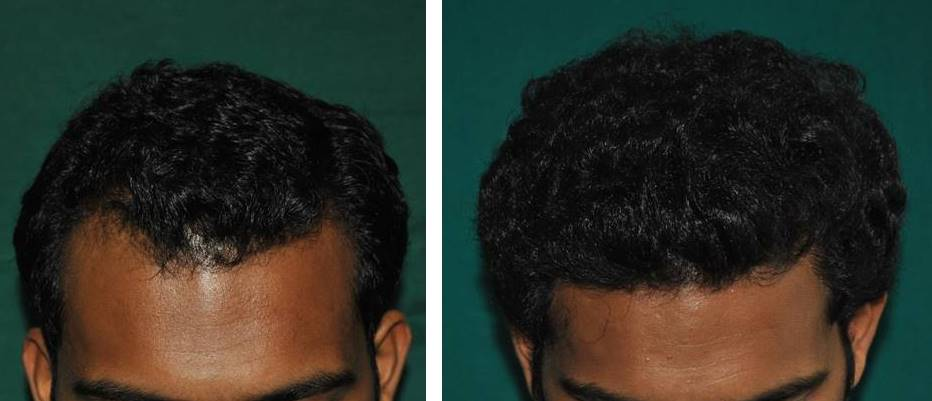 Baldness treatment Ernakulam
