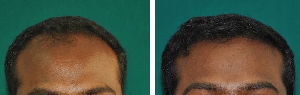 Permanent hair fixing Kerala