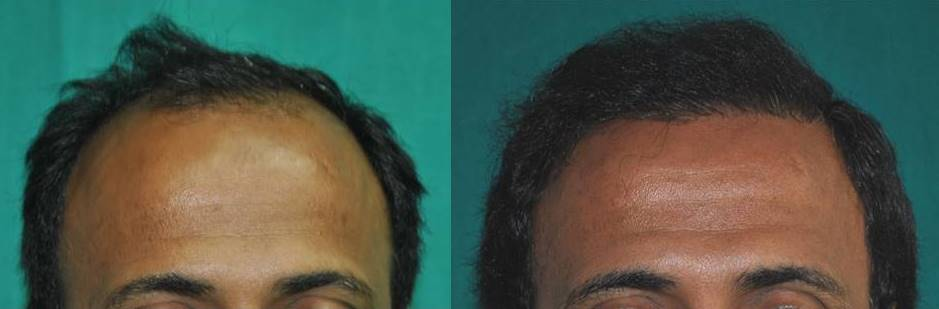 Hair loss treatment Malayalam