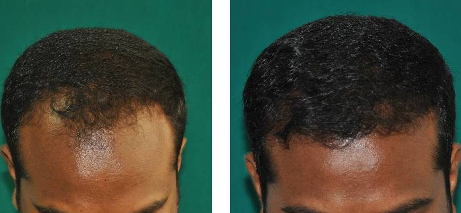 Hair plantation Kerala