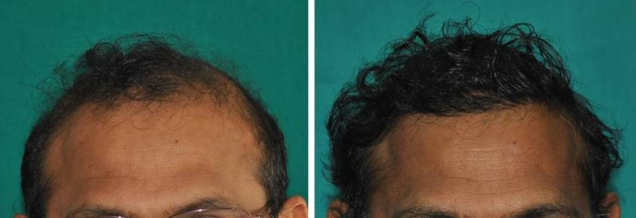 Baldness treatment malayalam