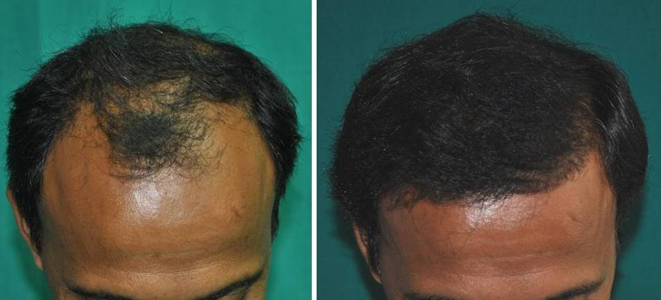 Hair transplantation Cochin result